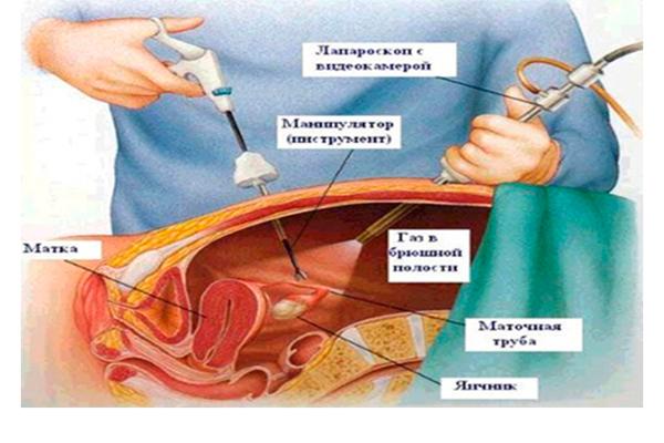 Операция по лапароскопии