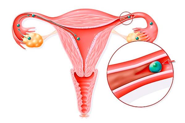 Непроходимость маточных труб, как одна из причин применения лапароскопии