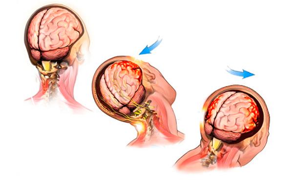 Сотрясения головного мозга, как одна из причин понижения пролактина у женщин