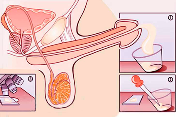Анализ на исследование качества спермы