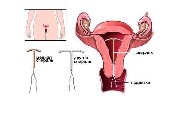 Кровотечения шейки матки из-за установки противозачаточной спирали