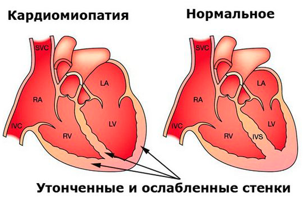 Возможная кардиомиопатия после ЭКО беременности
