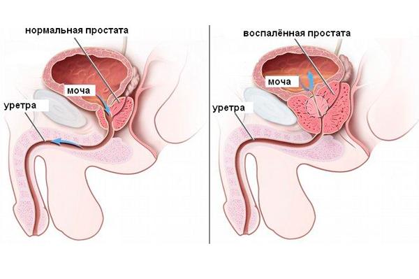 Простатит, как один из факторов повышения концентрации пролактина у мужчин