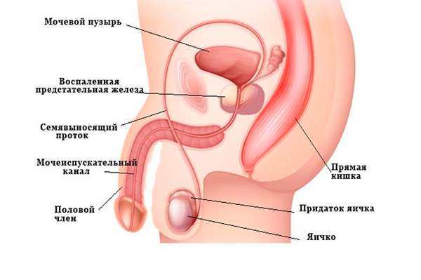 Воспаление простаты, влияющее на повышения лейкоцитов в сперме