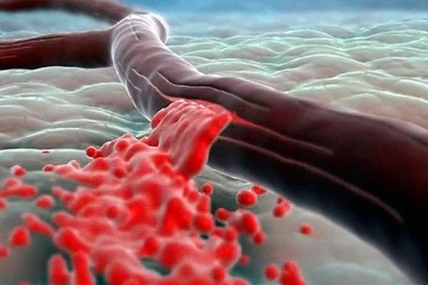 Обнаружение гемофилии при помощи амниоцентеза