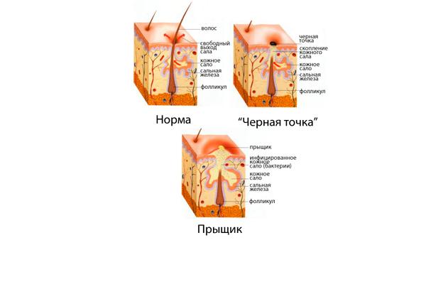 Повышенная секреция сальных желез, как один из симптомов повышенного содержания андрогенов у женщины