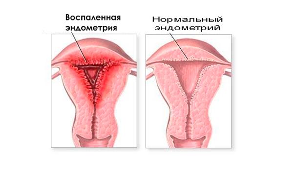 Изменение базальной температуры из-за эндометрита
