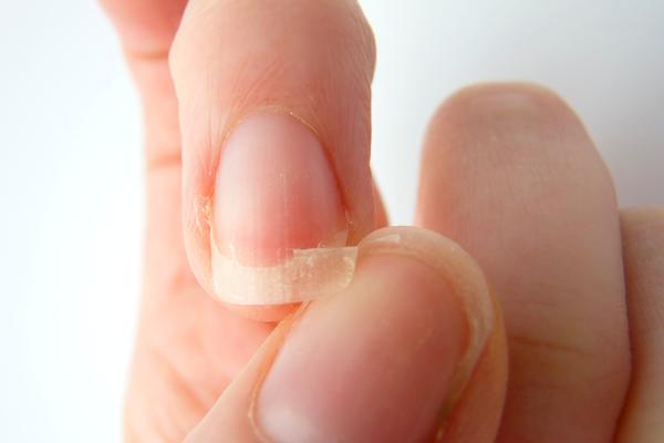 Ломкость ногтей из-за нехватки витамина Д