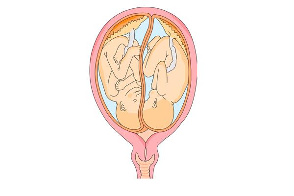 Многоплодная беременность в результате процедуры ЭКО