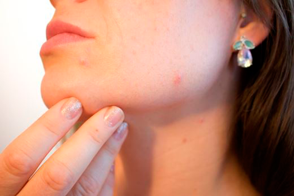 Угревая болезнь из-за повышенной концентрации гормона 17-ОН прогестерон