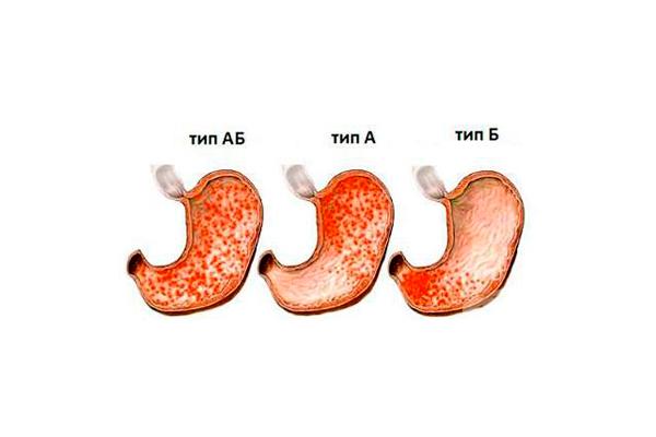 Низкий уровень гемоглобина в следствии гастрита