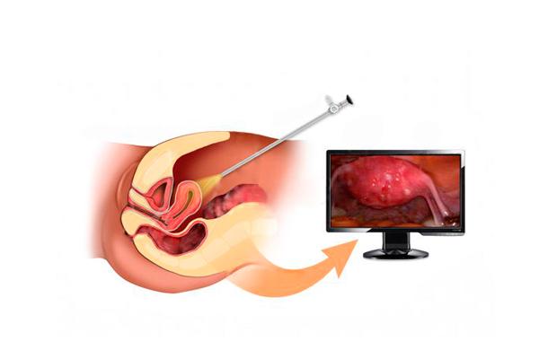 Высокий уровень ФСГ из-за перенесенной операции по удалению кисты на яичнике