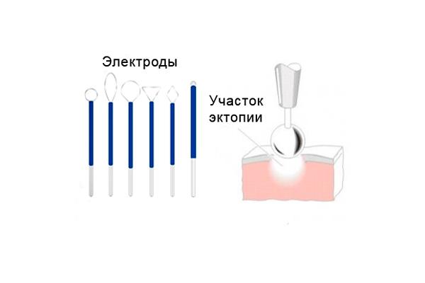 Процедура диатермокоагуляции