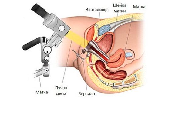 Кольпоскопия перед процедурой криодеструкции