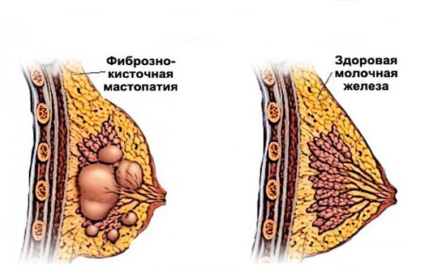 Мастопатия, как одна из болезней которую можно выявить при сдаче анализа на пролактин