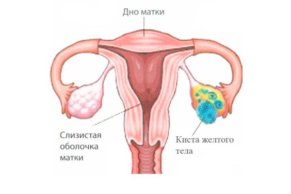 Киста желтого тела, как одна из причин повышения прогестерона