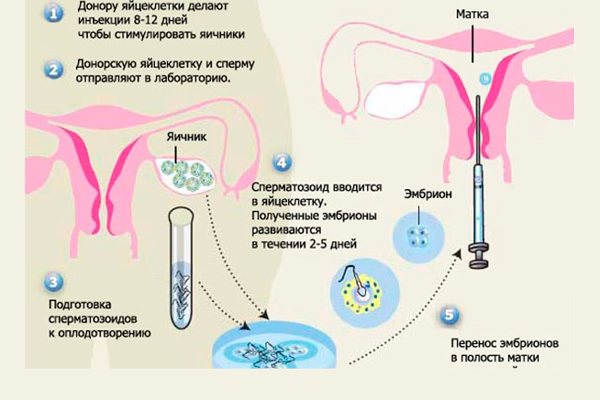 Схема проведения ЭКО с донорскими ооцитами