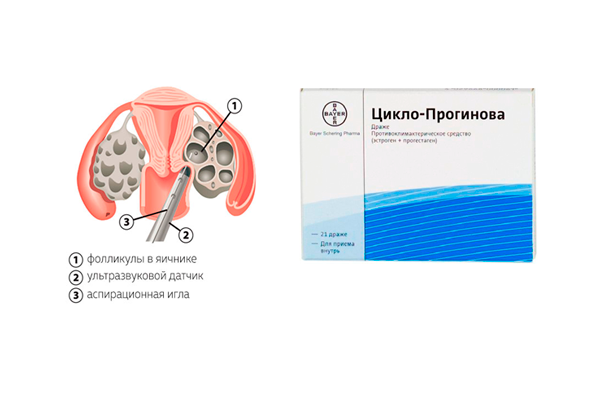 Назначение препарата Прогинова одновременно с пункцией яичников