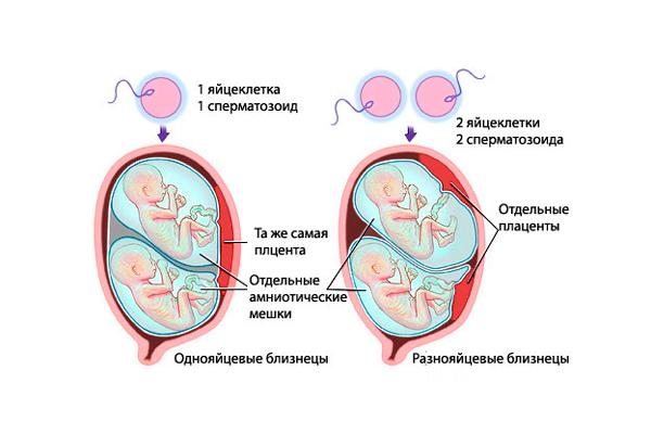 Многоплодная беременность, как одна из причин повышения уровня прогестерона