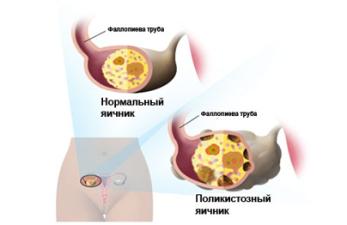 Склерокистоз яичников: симптомы и лечение