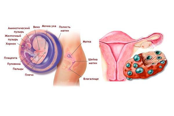 Беременность при склерокистозе яичников