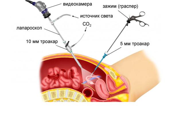 Лечения синдрома поликистозных яичников лапароскопией