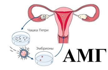 Антимюллеров гормон (АМГ) при ЭКО