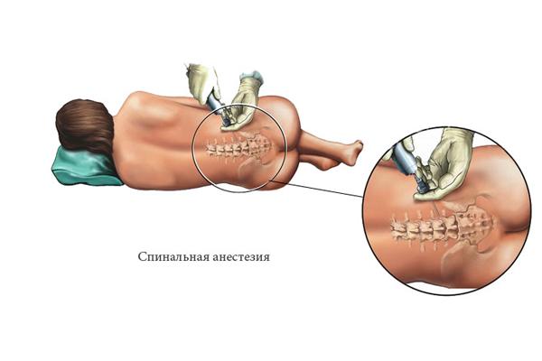 Сроки восстановления качества спермы после операции