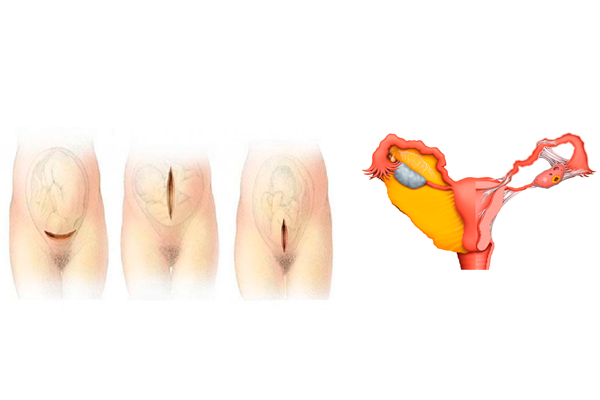 Образование спаек после операции кесарева сечения