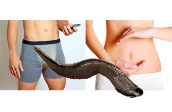Гирудотерапия при мужском и женском бесплодии