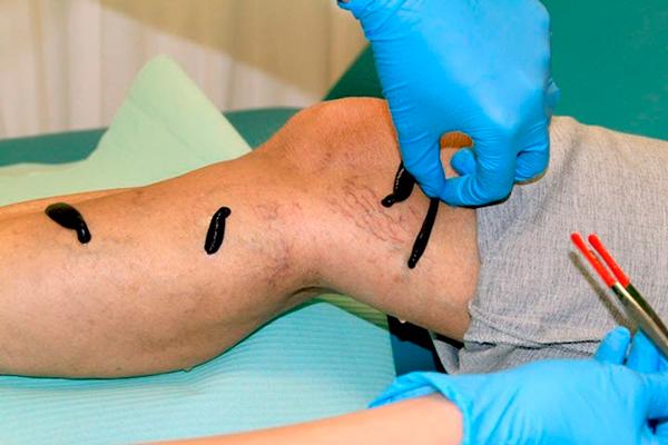 Применение гирудотерапии при варикозе