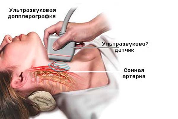 УЗИ для определения гормонального бесплодия