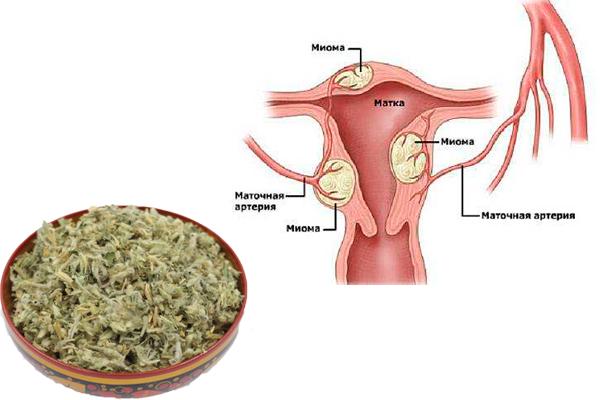 Лечение миомы матки измагеном