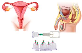 Хиджама при женском и мужском бесплодии: эффективность метода