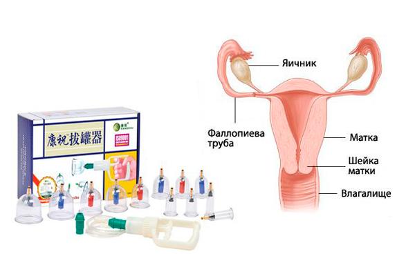 Нормализация проходимости труб после кровопускания