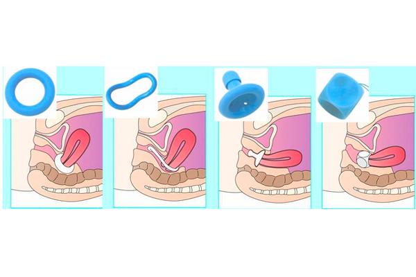Установка пессария при беременности с короткой шейкой матки