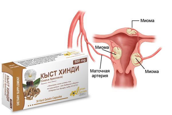 Лечение миомы матки средством Кыст аль Хинди