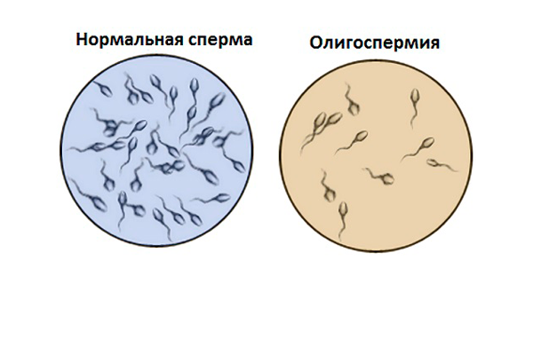 Применение методики ПИКСИ при сперме низкого качества