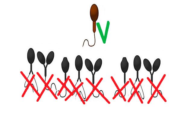 Отбор сперматозоида со самым правильным морфологическим строением