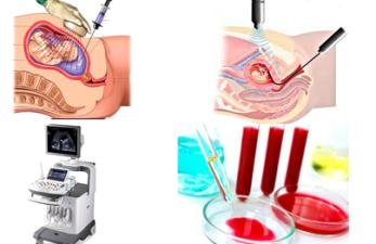 Основные методы пренатальной диагностики