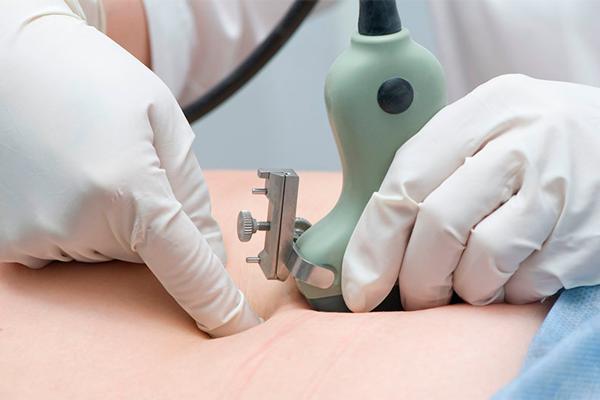 Фетоскопия, как один из методов инвазивной диагностики