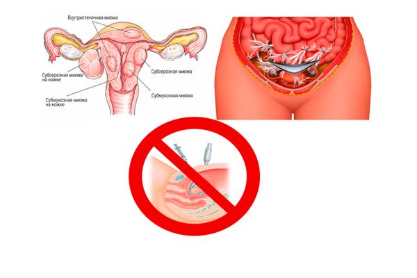 Запрет на проведение инвазивного метода исследования при спаечных процессах и миоме матки
