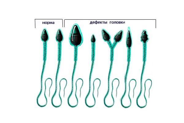 Дефекты головки спермия
