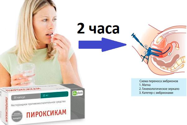 Прием одной таблетки Пироксикама за два часа до пересадки эмбрионов