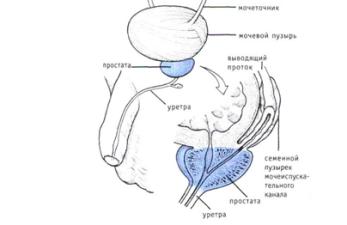 Секреторное бесплодие у мужчин: причины и лечение