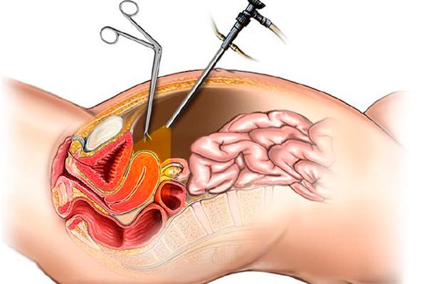 Устранение непроходимости труб при помощи лапароскопии