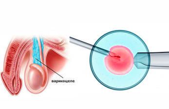 Возможно ли ЭКО при мужском факторе бесплодия