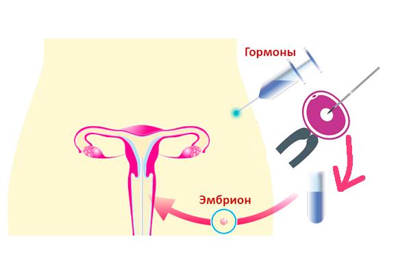 Схема проведения ЭКО при мужском факторе бесплодия