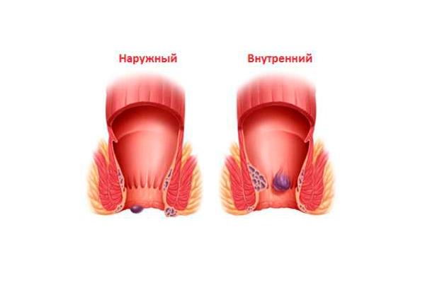 Появление геморроя в следствии запора во время беременности