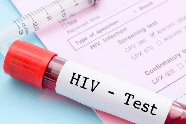 Анализ на ВИЧ инфекцию на 8-м месяце беременности